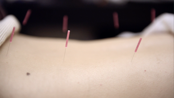Acupuncture at Chi Yu